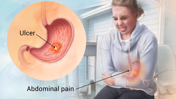 Peptic Ulcer Natural Treatment | Gastric Ulcers Remedy